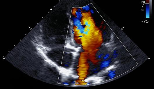 2 Nov - Sydney Cardiac Imaging in Cardiomyopathies and Heart Failure - 7 CPD