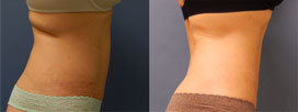 Before & After CoolSculpting + Venus Legacy Treatment set 1