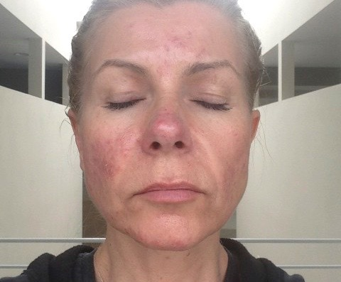 Qēt Botanicals founder Lisa Brill skin before & after