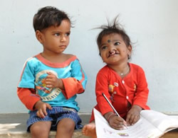 Reaching out to the most isolated areas to help people with cleft conditions